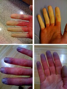 Raynauds_Syndrome